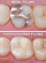 natural colored fillings